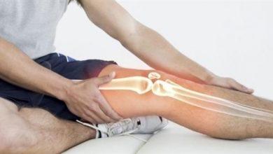 "Photo of ""صمغ"" لاصق للعظام يصلح الكسر في 5 دقائق"