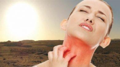 Photo of هذه الأعراض تنذر بحساسية الشمس