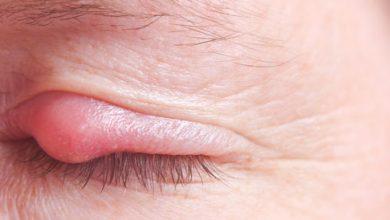 Photo of 7 وصفات طبيعية للتخلص من شحاذ العين