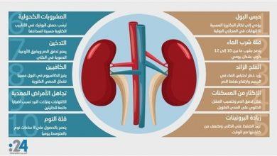 Photo of إنفوغراف: 10 عادات يومية تُدمر صحة الكليتين