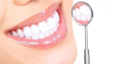 Photo of خطوات بسيطة تحافظ على بريق الأسنان