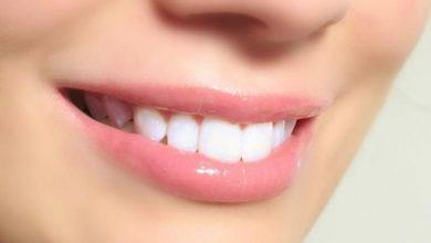 Photo of ماذا يحدث عندما لا تنظف أسنانك بالفرشاة؟