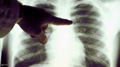 Photo of مثل التدخين.. أطعمة تؤدي إلى سرطان الرئة