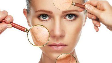 Photo of إليك 5 علاجات منزليّة تُزيل آثار الحروق من الجلد!
